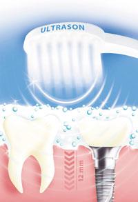 emmi-dent-microbulles Emmi Ultrasonic AG lance la 1ère brosse à dent à ultrason.